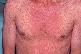 Mga Measles